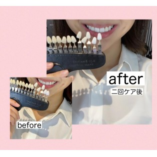 before after☆