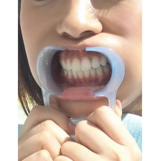 歯の本数などの制限はありますか?